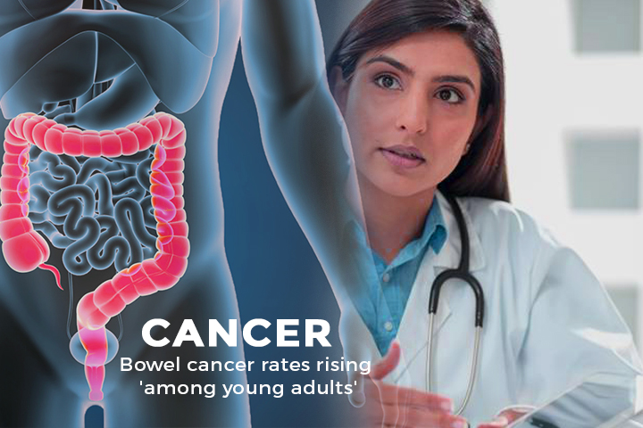 Rate of Bowel Cancer rising in Young Adults in high-income Countries