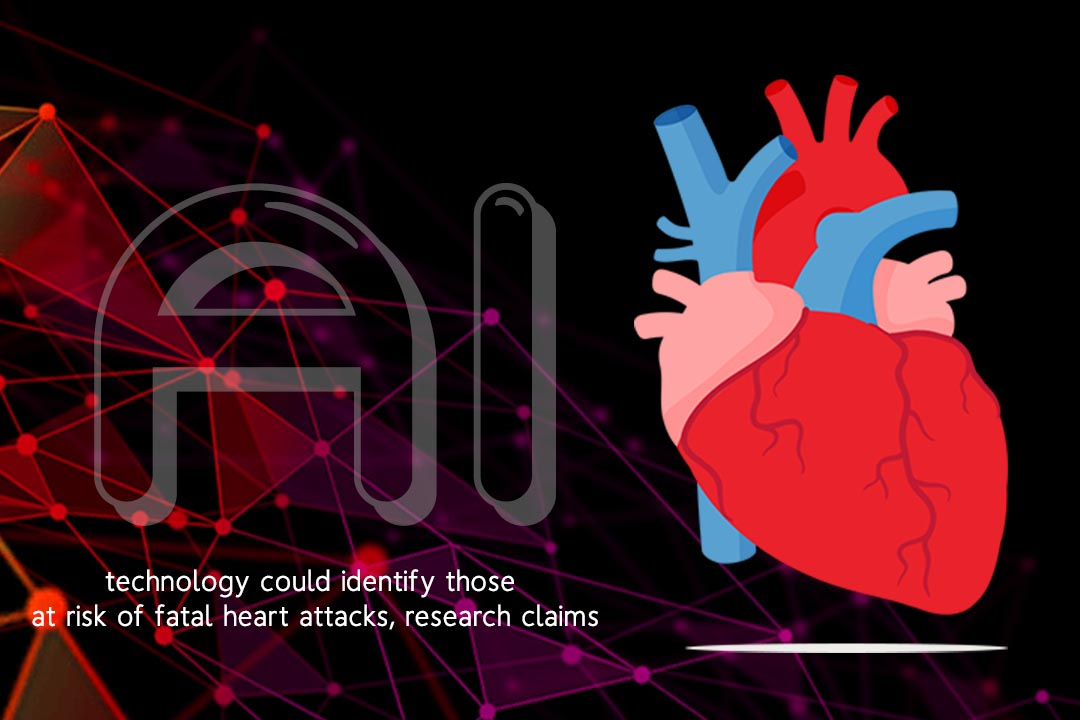 Artificial Intelligence might recognize fatal Heart Attack Risk